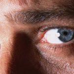 Síndrome de Sjögren: como se manifesta e quais as implicações na visão