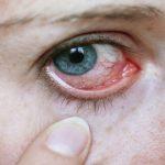 Não sabe se Herpes Ocular é contagioso? Descubra agora!