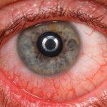 Quais são os principais sintomas da uveíte? Descubra agora!