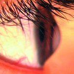 Ainda não sabe o que é a doença ocular Queratocone?