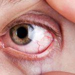 Endoret – PRGF: Técnica Inovadora Essencial para Tratar o Olho Seco Grave